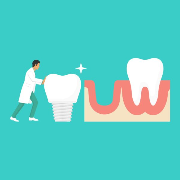 How To Find A Dental Implant Specialist
