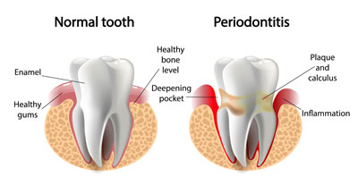 Reasons To See A Periodontist For Your Gum Health